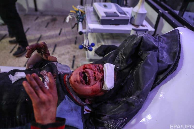 """""""Ruskij mir"""" w Syrii. Wojska Asada i Putina wciąż zabijają dzieci we Wschodniej Gucie"""